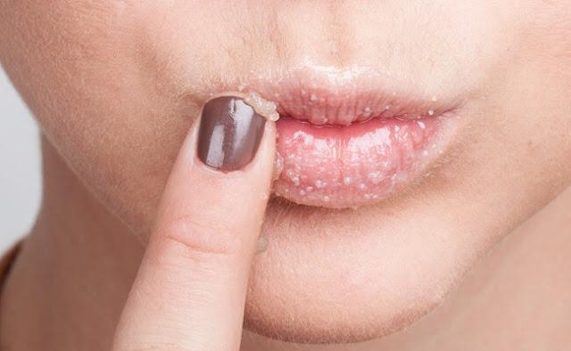 big lips - نفخ الشفايف طبيعيا