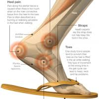 foot pain flip flops tampa podiatrist
