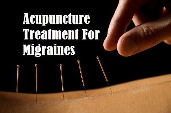 Acupuncture Treatment For Migraines