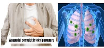 Cara Mengobati Penyakit Infeksi Paru-Paru