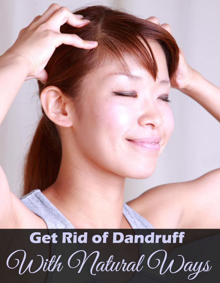 Get Rid of Dandruff With Natural Ways