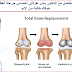 جراحة استبدال المفاصل مع الدكتور ياش غولاتي أخصائي جراحة العظام في دلهي يجعل حياتك خالية من الألم