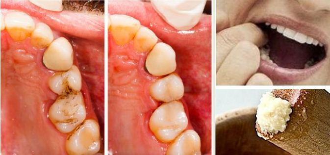 Relieve Dental Caries Pain At Home