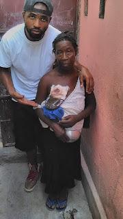 Mackenson Saintloth rehabilitates 58 year old beggar in Haiti.