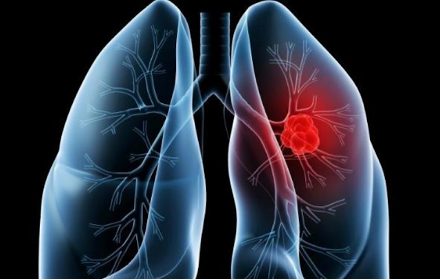 is lung cancer curable? - healtinews