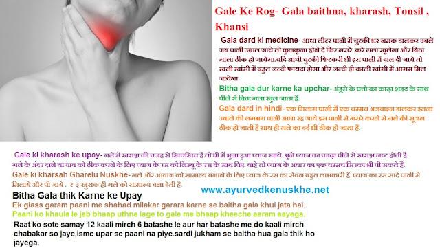 Tonsil, Gala baithna, Kharash