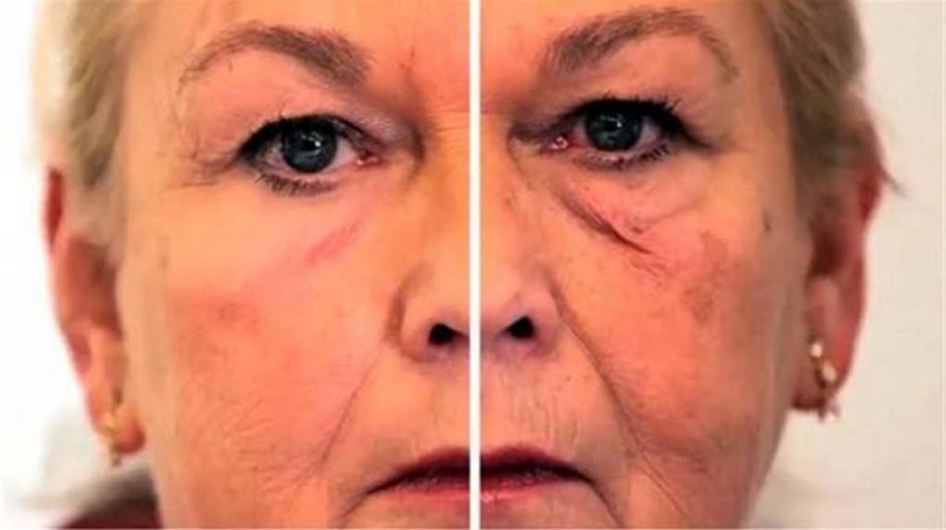 Top Conseils pour rajeunir la peau d'environ 10 ans avec ces pratiques  CF88