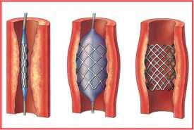 kenapa jantung koroner harus pasang ring jantung