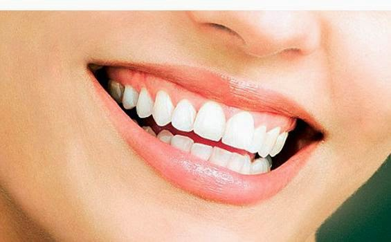 Serba Kecantikan Cara Memutihkan Gigi Dengan Cepat