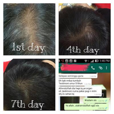 masalah keguguran rambut