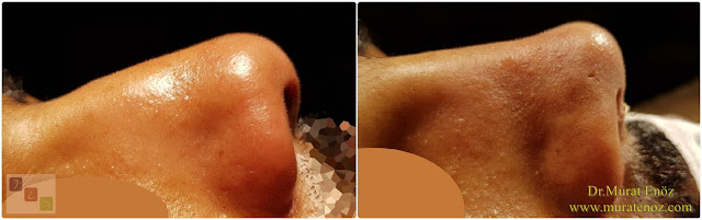 Nasal root filling with subcutaneous tissue - Nasal root filling with underskin tissue - Nose tip plasty - Limited nasal hump removal - Limited nasal hump reduction - Rhinoplasty without breaking the bone - Nose tip plasty in men Istanbul - Nose tip surgery in Istanbul - Nose tip plasty in Turkey
