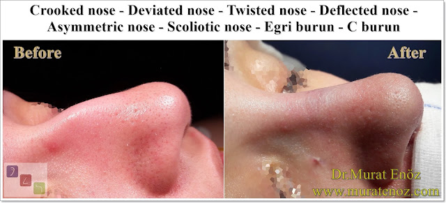 C Burun - Crooked Nose - Deviated Nose - Twisted Nose - Deflected Nose - Asymmetric Nose - Scoliotic Nose - Rhinoplasty in Istanbul - Rhinoplasty Istanbul - Rhinoplasty in Turkey - Rhinoplasty Turkey - Nose Job Istanbul - Nose Job Turkey