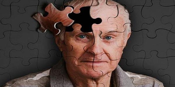 Βηματοδότης εγκεφάλου ίσως επιβραδύνει τη νόσο Αλτσχάιμερ
