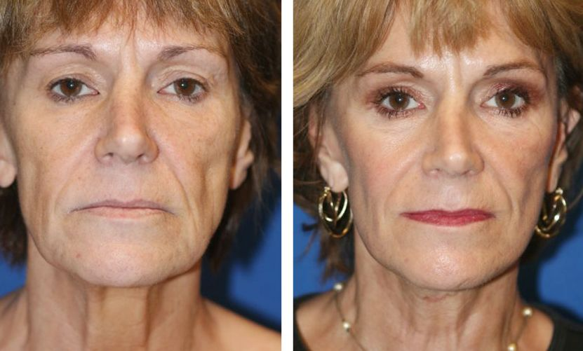 Face Toning Therapy To Decrease Nasal Folds