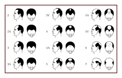 How To Solve Hair Loss In Young Men Problem: The type of ...