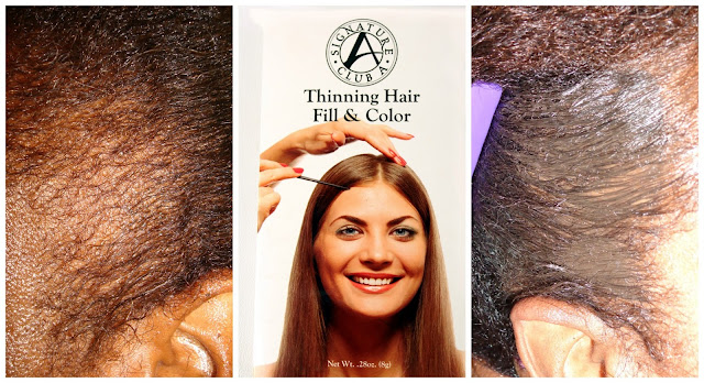 Thinning Hair Fill and Color for Traction Alopecia