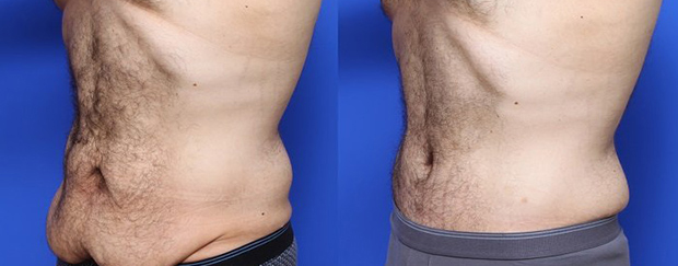 before-after-tummy-tuck