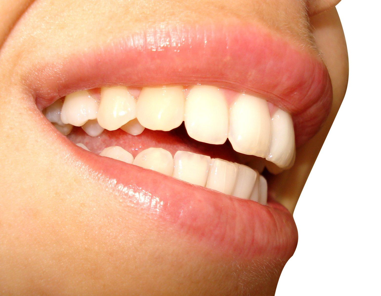 Cara Memutihkan Gigi Secara Alami Tips Kesehatan Dan Kecantikan