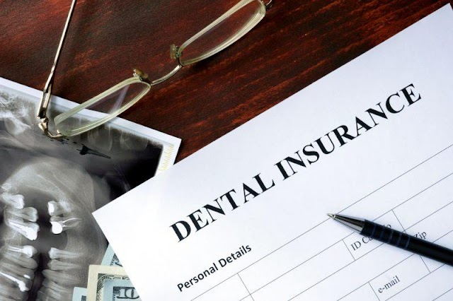 Should you buy dental insurance?