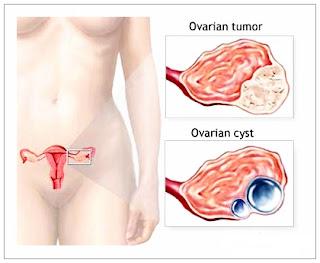 Pengobatan Herbal Tumor Ovarium Yang Aman Dan Alami