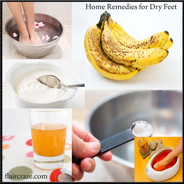 home-remedies-for-dry-skin-on-ffet