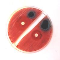 Οι αντιμικροβιακές και αντιπαρασιτικές ιδιότητες των φλοιών καρυδιού