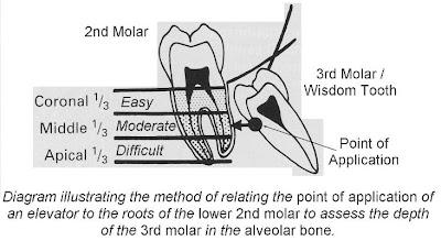dentalaka: Impacted Mandibular 3rd Molar Classification