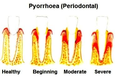 Pyorrhoea Dental Clinic image
