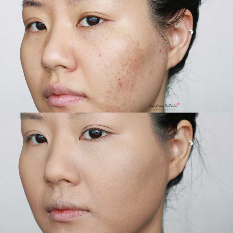 Dealing with Melasma, Covering Up Hyperpigmentation