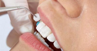 những điều cần biết về bọc răng sứ -4