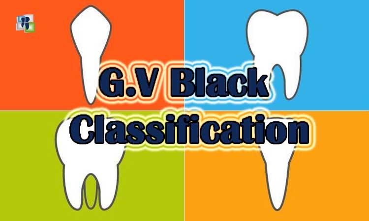 تصنيف بلاك للحفر السنية - تصنيف تحضيرات الأسنان