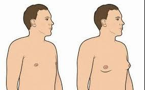 القضاء علي ترهلات الثدي عند الرجال بطرق فعاله ( التخلص من الجينو التثدي )