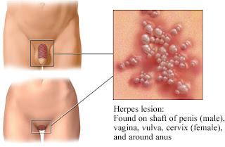 Obat Herpes Genitel dan Simpleks