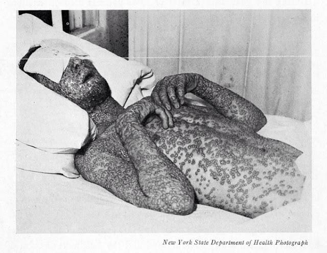penyakit cacar akut ternyata sudah ada sejak ribuan tahun lalu
