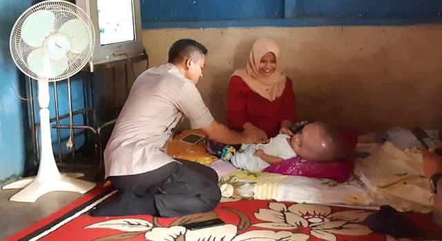 Kapolres Lampung Utara Sambangi Balita Pengidap Penyakit Hydrocephalus
