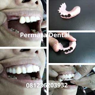 gambar gigi palsu lepas bongkar pasang lepasan