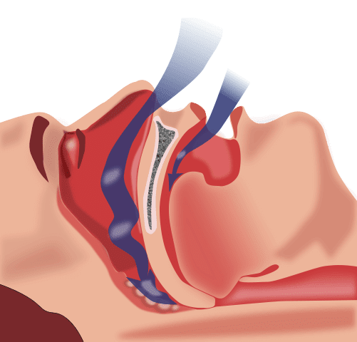 How to Stop Snoring: Causes, Cures, and Remedies