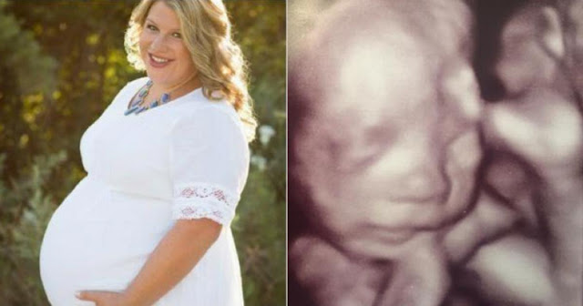 After Her Husband Dies, She Finds out She's Pregnant - Then She Sees the Jaw-Dropping Ultrasound