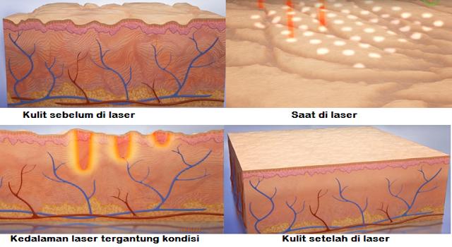 Perawatan wajah dengan Laser