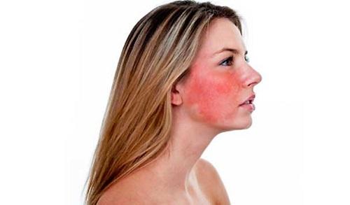 Remedios Caseros para Rosacea de la Cara