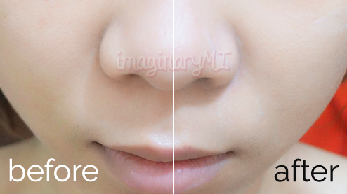 before after White Perfect Clinical Day Cream