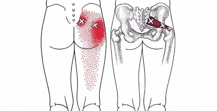 Here's A Simple Trick To Get Rid Of Back, Hip, And Leg Pain