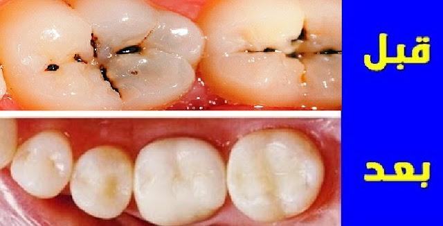 وصفة منزلية لازالة تسوس الاسنان والجير فى يوم واحد .. مجربة وفعالة من أول استعمال