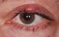 Kanker kulit – Gejala, Penyebab, Pengobatan dan Pencegahan - karsinoma kelenjar sebasea