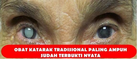 Obat Katarak Tradisional Paling Ampuh