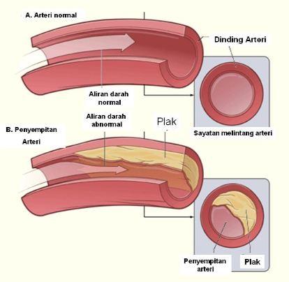 Ateroklerosis