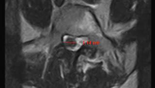 epidurolisi/periduolisi con trattamento radiofrequenza midollare L5 e S1 lombare rx guidata