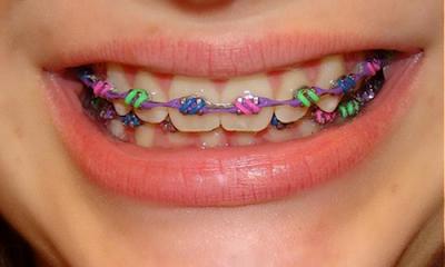 Mắc cài thường có chi phí niềng răng rẻ nhất
