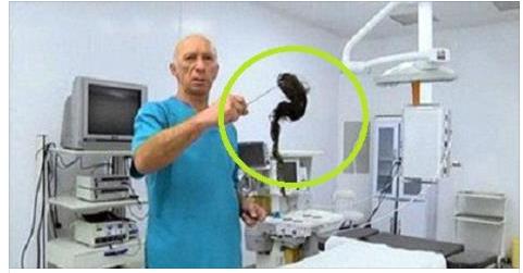 بالصور : لن تصدق ماذا وجد الأطباء في بطن طفلة صغيرة والذي يزن أكثر من كيلو جرام وسبب لها ألما شديدا !