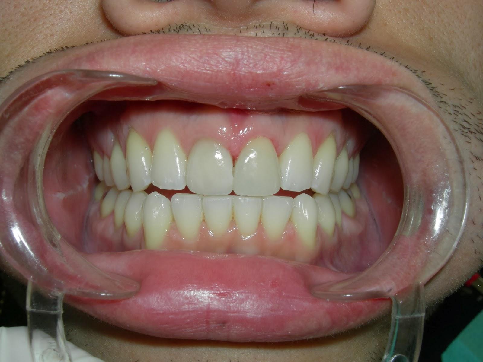 Los Angeles Dentist Blog - Dr Arthur A. Kezian DDS